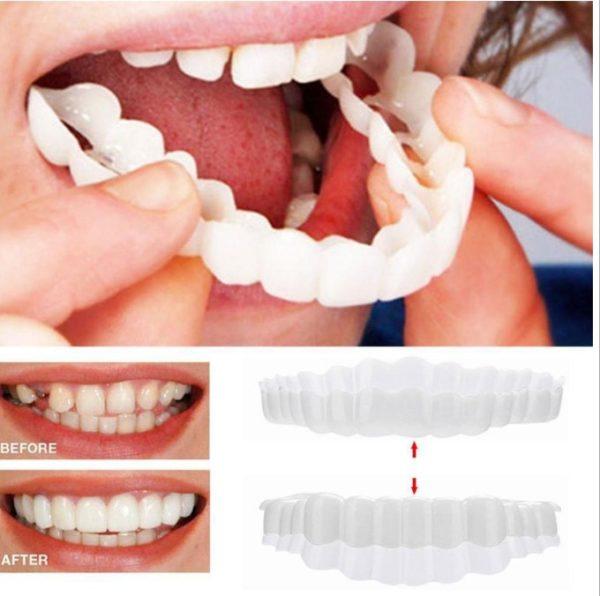 Vysoko kvalitná silikónová zubná náhrada pre krásny úsmev